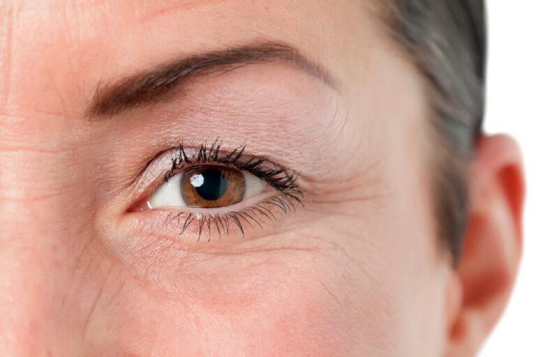 As rugas nos olhos são o resultado das marcas do tempo